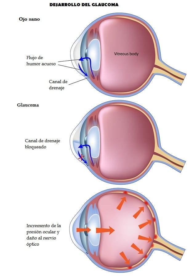 Definir medicamentos para la hipertensión ocular